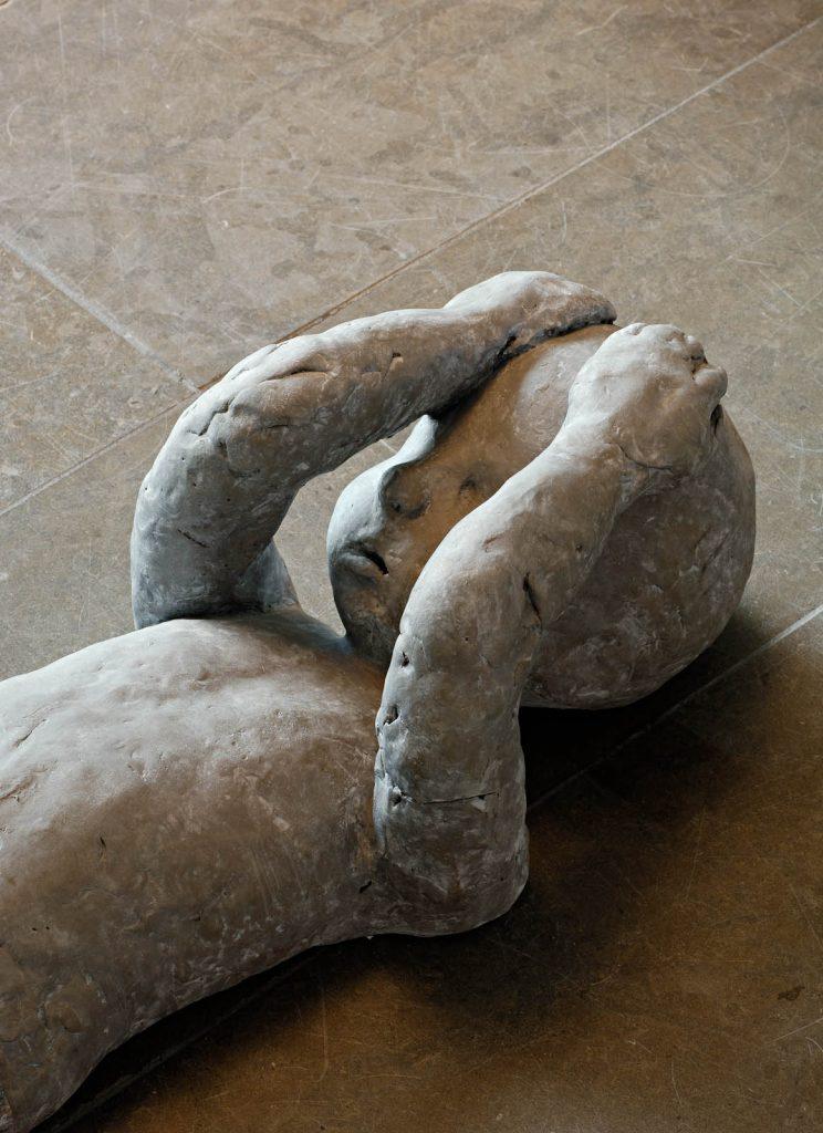 Detalj av ett ojämnt format liggande barn. Händerna på pannan, sorgsen mun, knappt några ögon. Ojämnheter i armar och huvud. Under av Charlotte Gyllenhammar